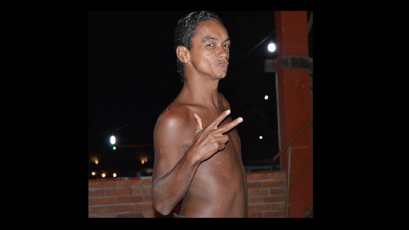 """Muito conhecido em Guaraí, """"Xexinha"""" morre vítima de complicações da diabetes"""